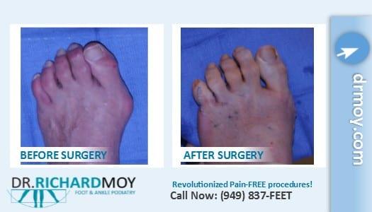 patient:</b>032521DP