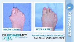 bunion surgery photos