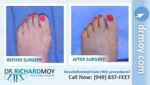 bunion surgery recovery time