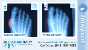 bunion x ray pictures