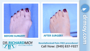 bunion removal surgery