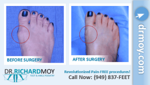 bunion surgery video