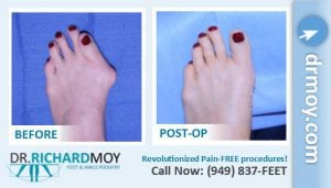 bunion surgery cost