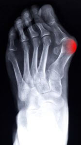 An x-ray taken before bunion surgery