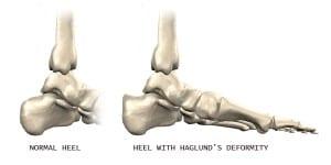 haglundsdeformity1