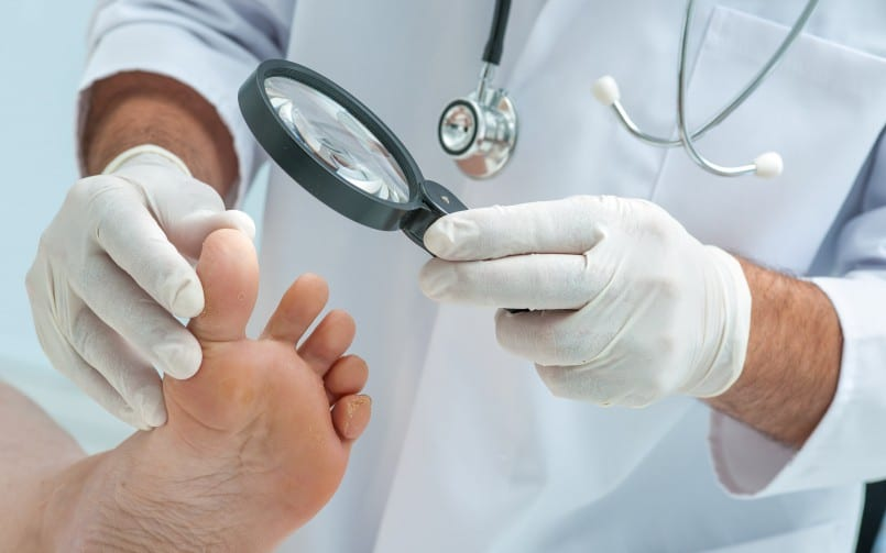 bunion surgery options