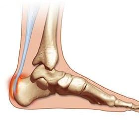 ankle bone pain