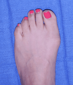 bunions on foot