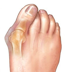 Bunion Surgery Information