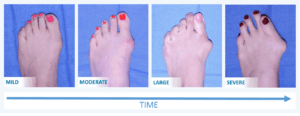 Bunion Severity